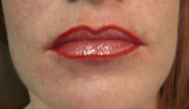 12-11-07_lips_after.jpg