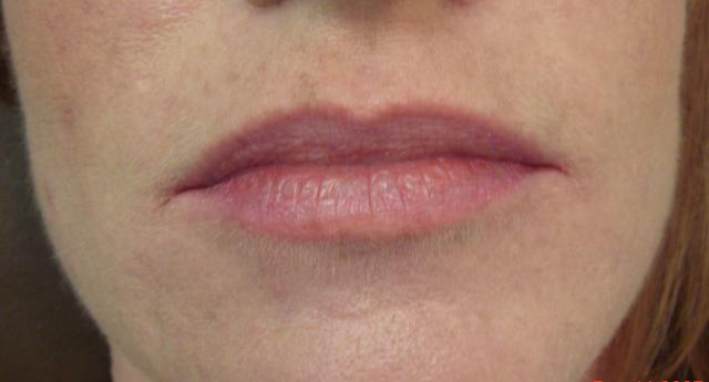 12-11-07_lips_before.jpg
