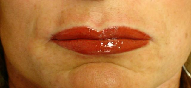 6-29-11_Lips_After.JPG