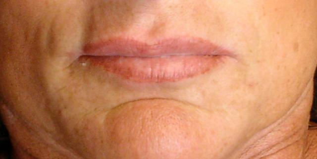 6-29-11_Lips_Before.JPG