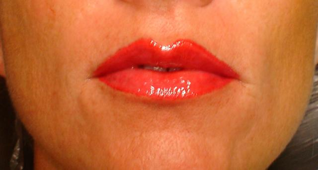 8-15-14_Lips_After.JPG