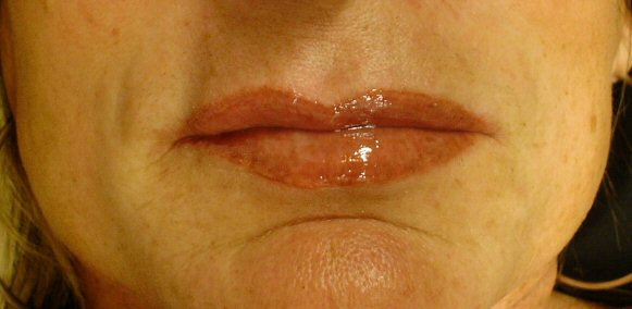 9-1-11_Lips_After_Healed.JPG